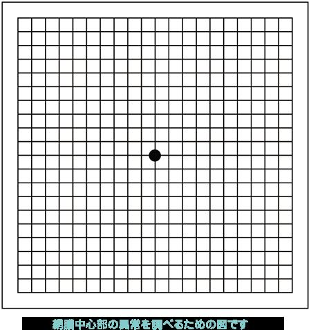 網膜中心部の異常を調べるための図です